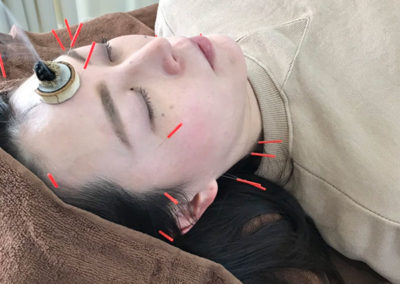 今回の美容針で美容はもちろん、身体も健康的に
